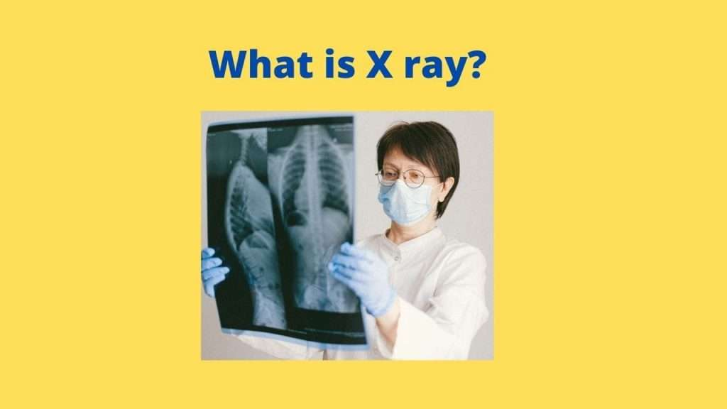 What is X ray